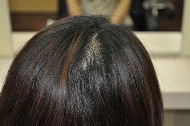 「女性 ハゲ 後頭部」の画像検索結果